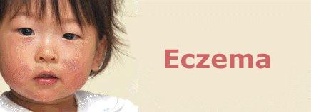 Bệnh Eczema Là Gì? Tìm Hiểu Về Bệnh Eczema Là Gì?