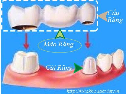 Mão Răng Là Gì?  Tìm Hiểu Về Mão Răng Là Gì?