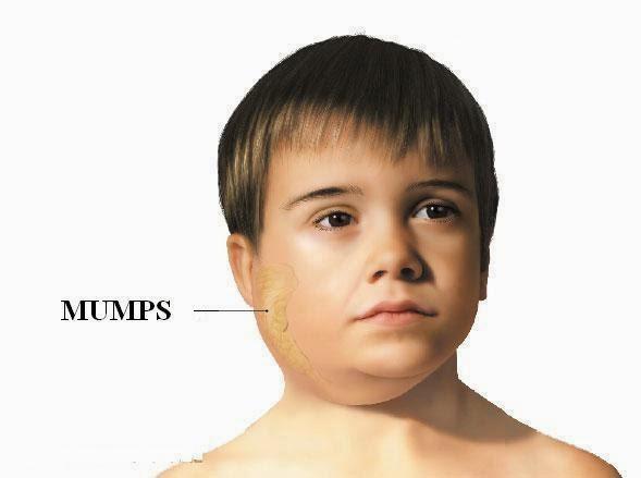 Mumps Là Gì? Tìm Hiểu Về Mumps Là Gì?
